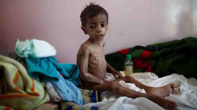 Cientos de niños mueren   a diario de hambruna