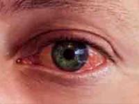 Aumentan casos de conjuntivitis: Salud